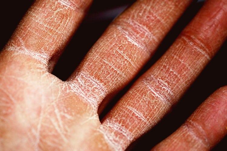 Briga o suhoj koži