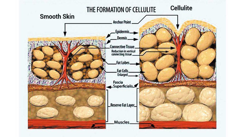 Kako ukloniti celulit